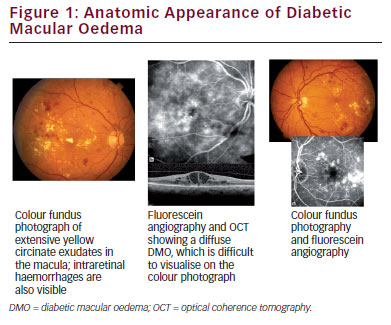 >Management of Diabetic Macular Oedema – Challenges and Solutions Along the Patient Journey