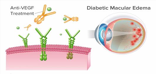 Antiangiogenic Treatment of Diabetic Macular Edema (DME)