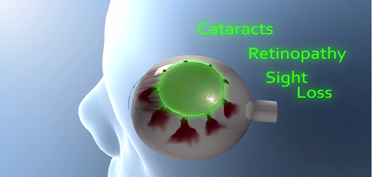 Non-Invasive Treatment for Ocular Melanoma