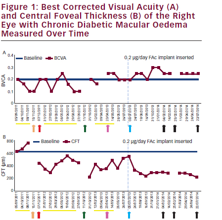 Visual Function and Structure Outcomes in a Patient with Diabetic Macular Oedema Insufficiently Responsive to Available Therapies – Treatment with Fluocinolone Acetonide Implant
