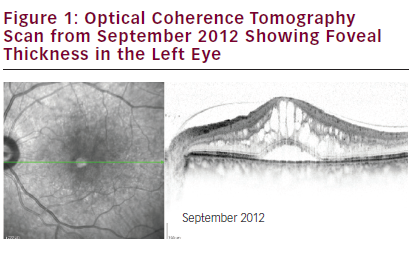 The Treatment of Diabetic Macular Oedema with ILUVIEN® Intravitreal Implant Following Prior Anti-VEGF Therapy – Case Study