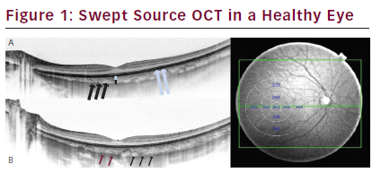 Choroidal Imaging with Swept Source Optical Coherence Tomography – A Review