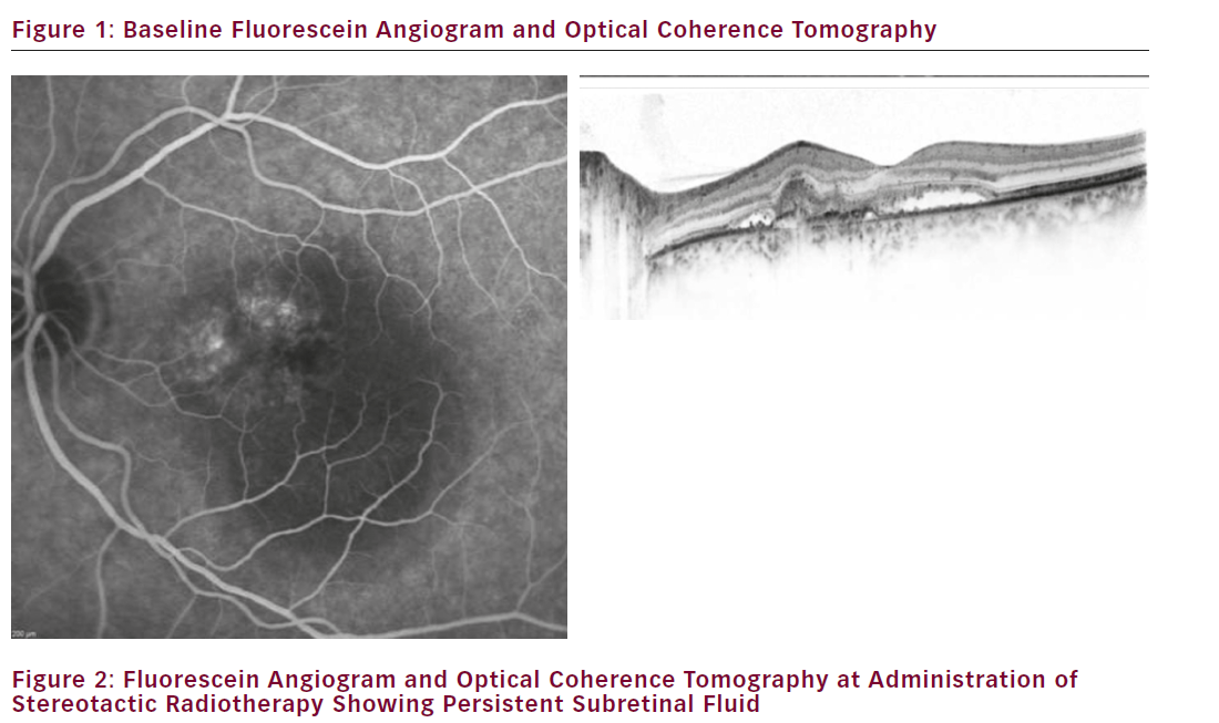 Low-energy Stereotactic Radiotherapy for Treatment of Exudative Age-related Macular Degeneration Adjunctive to Anti-VEGF Therapy