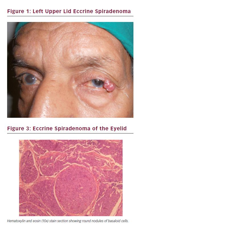 >Case Report Of Solitary Eccrine Spiradenoma Of Eyelid