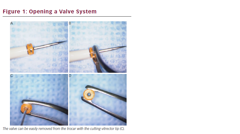 Microincision Vitrectomy Trocars – Redefining Surgical Practices Through a New Range of Applications