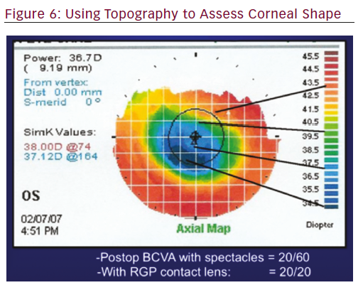 Importance of Performing Corneal Topography Before Cataract