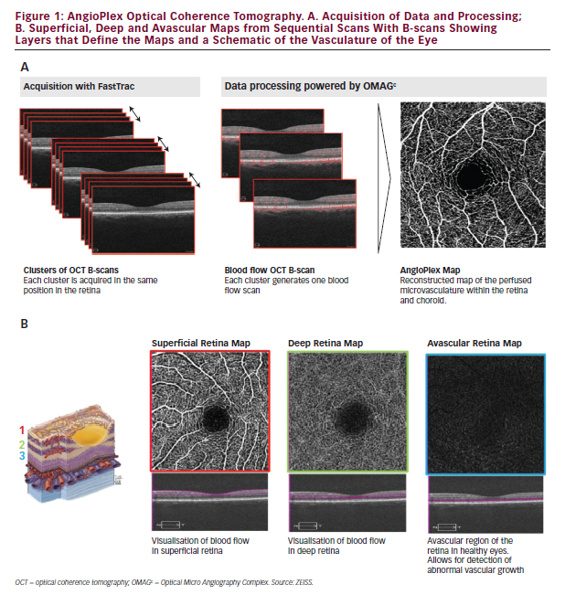 Optical Coherence Tomography Angiography of the Retinal Microvasculature using the Zeiss AngioPlex