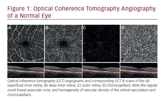 Advances in Optical Coherence Tomography Angiography