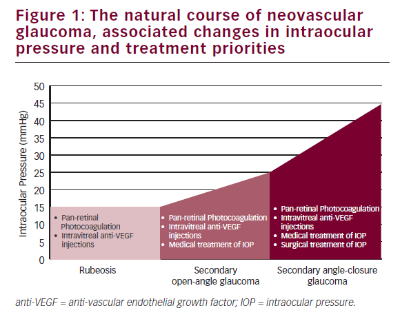 Reversing the Rubeotic Rampage – Current Approaches in the Management of Neovascular Glaucoma