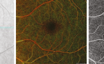 >Optical Coherence Tomography Angiography – A General View