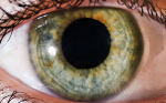 Diode Laser Trabeculoplasty in Patients with Pseudoexfoliative Glaucoma