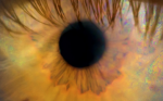 Intracorneal Inlays – Special Focus on the Raindrop