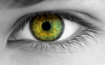 Transepithelial High Fluence Crosslinking for Keratoconus – Case Report of 1-year Follow-up