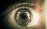 Dry Eye and Clinical Disease of Tear Film – Diagnosis and Management