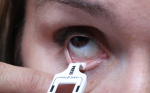 Diagnostic Tools for Dry Eye Disease