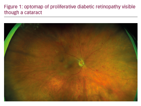 The Role of Ultra-widefield Retinal Imaging as a Standard Assessment Tool in the Cataract Practice