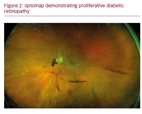 optomap diabetes mellitus
