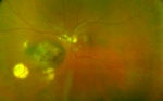 The Impact of Ultra-widefield Retinal Imaging on Practice Efficiency