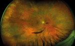 Advancing the Detection and Management of Diabetic Retinopathy with Ultra-widefield Retinal Imaging