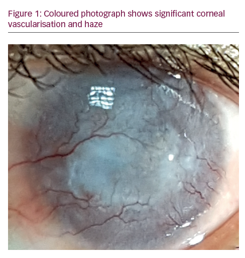Extensive Corneal Neovascularisation Treatment by Ultraviolet Corneal Collagen Crosslinking