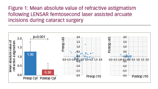 Management of Astigmatism with the LENSAR Laser System with Streamline