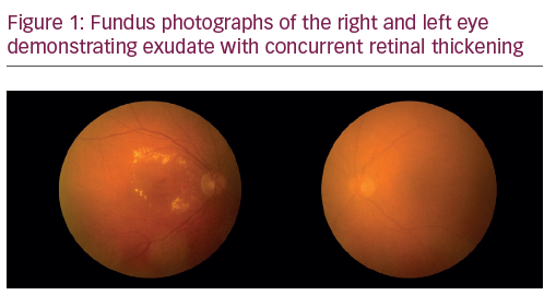 Review of Diabetic Macular Oedema Therapy