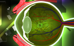 Discriminator and Diagnostic Features for Choroidal Malignant Melanoma and Choroidal Nevus