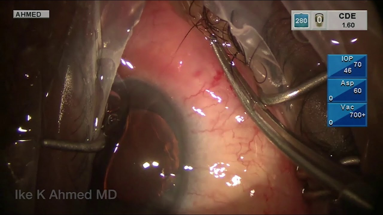 Gel Stent Implantation – Repositioning
