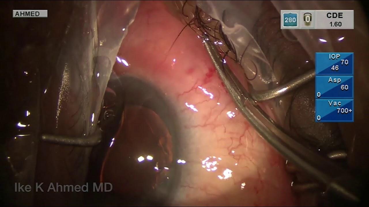 Gel Stent Implantation – Repositioning