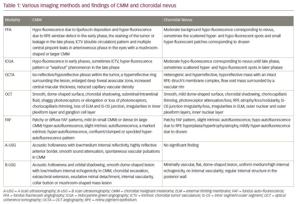 Discriminator and Diagnostic Features for Choroidal Malignant Melanoma and Choroidal Nevus