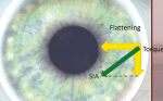 How to get Accuracy in Intraocular Lens Calculation in Normal and Extreme Cases