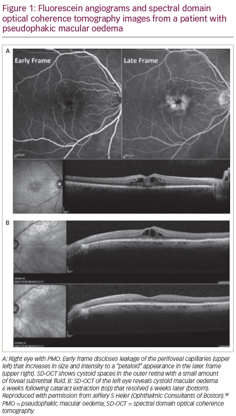 Nepafenac in the Treatment of Ocular Inflammation Following Cataract Surgery (Pseudophakic Macular Oedema) – an Update