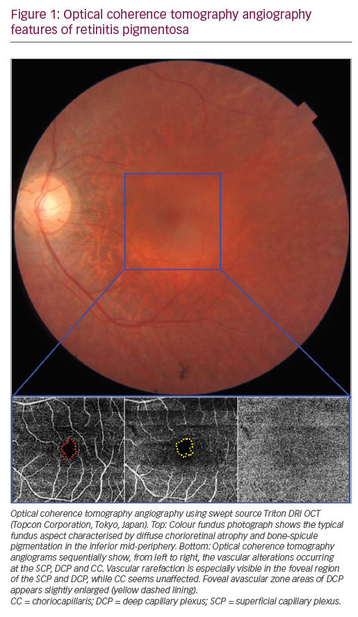 Optical Coherence Tomography Angiography Evaluation of Inherited Retinal Dystrophies – a Literature Review