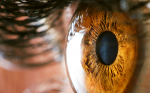 The Importance of Diagnosing Ectatic Corneal Disease