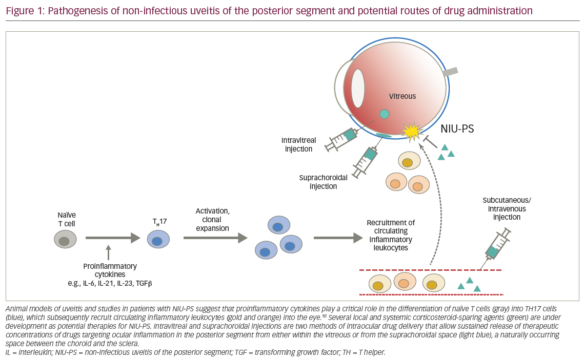 Emerging Treatments for Non-infectious Uveitis