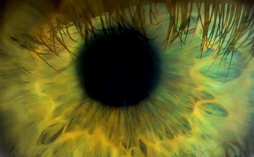 Data Presented at Retina 2019 Suggest that the Number of Anti–Vascular Endothelial Growth Factor Injections does not Affect the Rate of Macular Hole Development