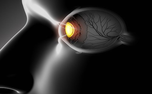 Implantable Macula Lenses for Patients with AMD—Focus on the Scharioth Macula Lens