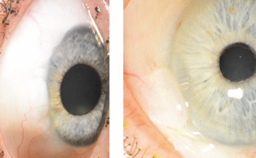 Minimally Invasive Glaucoma Surgery with a New Ab-externo Subconjunctival Bypass – Current Status and Review of Literature
