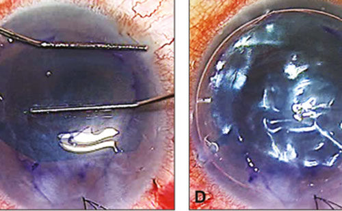 Descemet's Membrane Endothelial Keratoplasty (DMEK)—Why Surgeons Should Consider Adopting Endothelium-in Techniques
