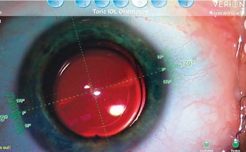 Imaging in Cataract Surgery