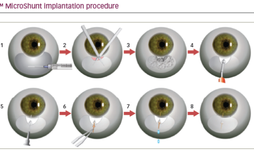 Innovations in the Surgical Management of Glaucoma
