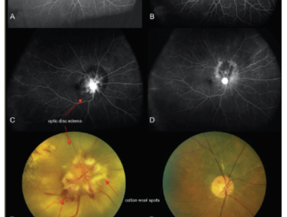 Radiation Retinopathy—A Review of Past and Current Treatment Strategies