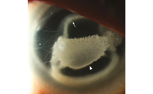 Toxic Keratopathy with Bi-layer Corneal Calcific Infiltrates Caused by Proparacaine Abuse—A Case Report